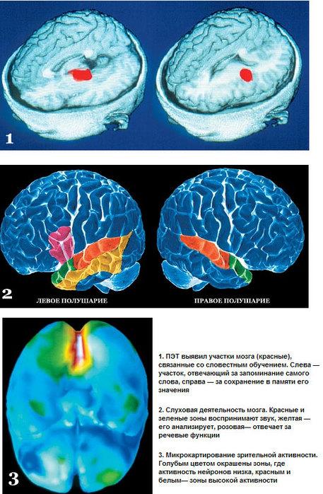 Части головного мозга отвечающие за эмоции