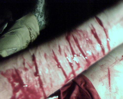 Рука в крови фото вк