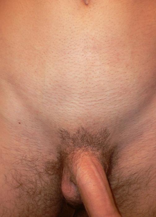 интим стрижки мужские фото.