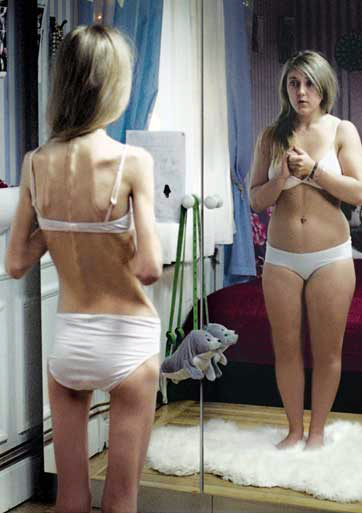 http://img0.liveinternet.ru/images/attach/b/3/19/996/19996369_anorexia_copy.jpg