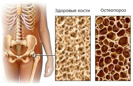 proryv-v-lechenii-osteoporoza-polza-vitamina-K1_21 (451x293, 42Kb)