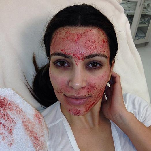 1_Kim_Kardashian_vampire_facelift (524x524, 100Kb)