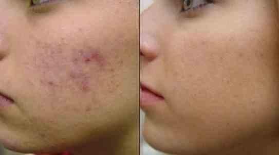 Маска для кожи. (543x303, 7Kb)
