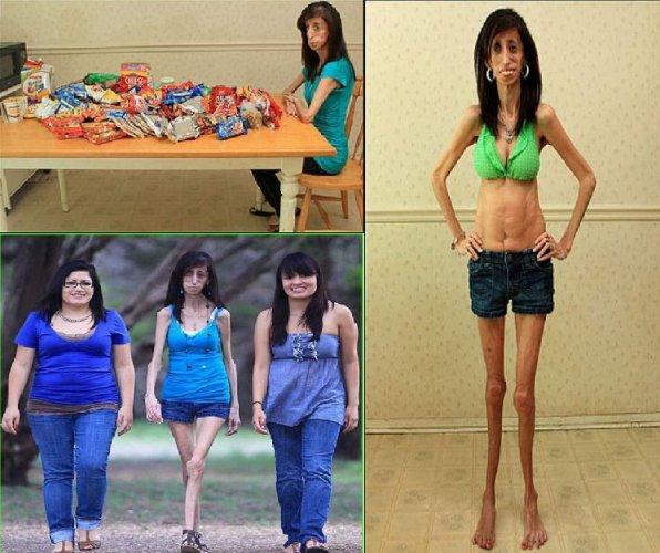 самые толстые люди в мире фото вес