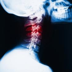 Пациенту пришили голову (234x234, 72Kb)