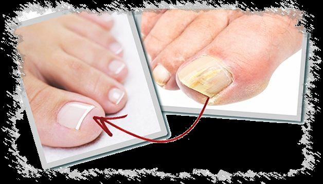 Как размягчить ногти на ногах при грибке для стрижки