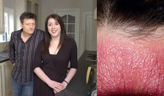 10 людей с самыми необычными диагнозами