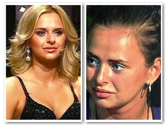бородина фото до и после пластики фото