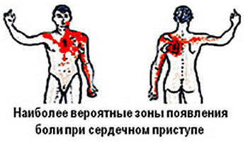 3720816_Serdechnii_pristyp2 (350x205, 14Kb)