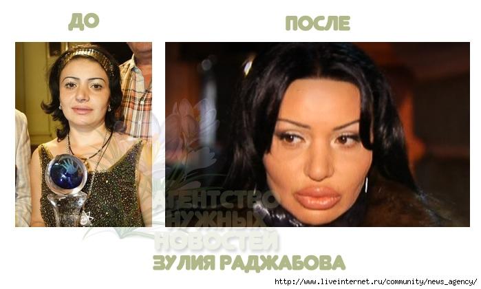 зулия раджабова до и после пластики фото