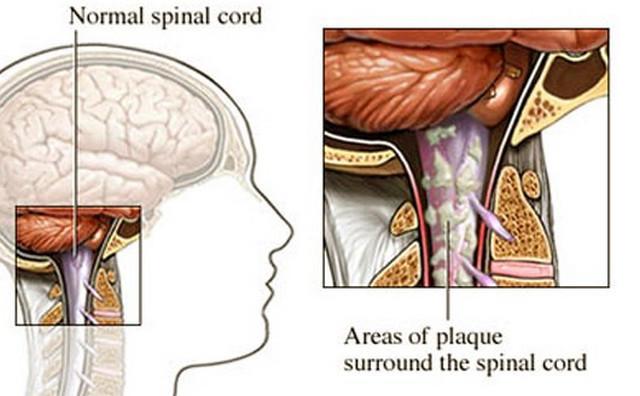 болят ли суставы при рассеянном склерозе