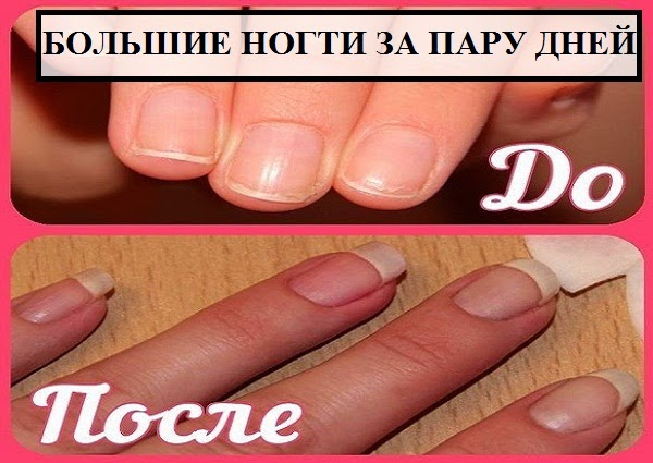 Как сделать чтобы ногти росли быстрее и крепче в домашних условиях - Xaxatalka.ru