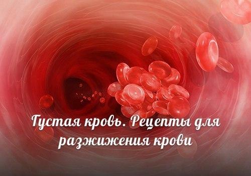 5365806_110372836_PWov5rlZV2s (500x350, 36Kb)