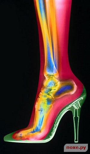 Высокие каблуки. Как уменьшить их негативное влияние на ноги (уход за
