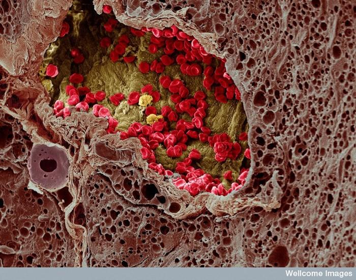 Фото как выглядят раковые клетки