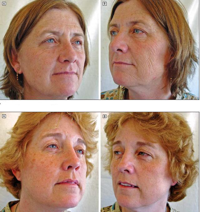 Как курение влияет на кожу женщины