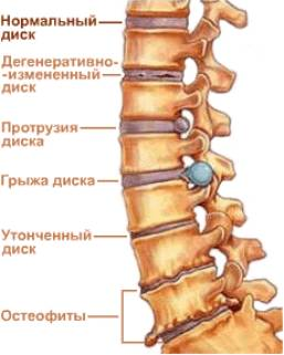 http://img0.liveinternet.ru/images/attach/c/0/44/964/44964013_Osteohondroz.jpg