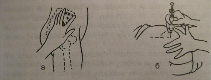 Как сделать внутримышечную инъекцию ребенку