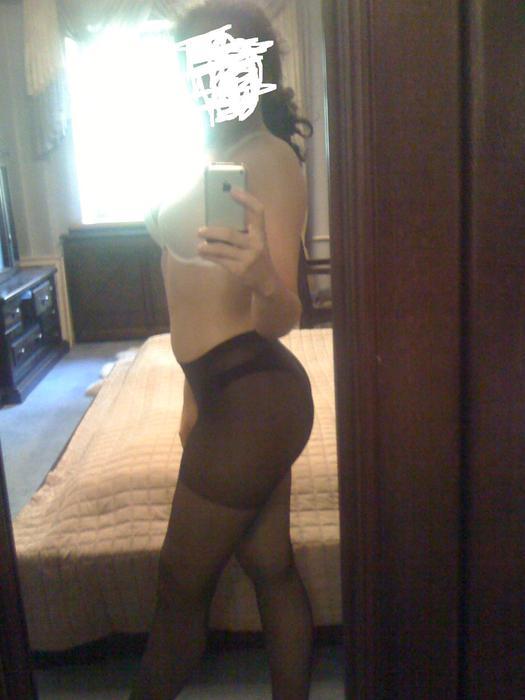 Фото жирная задница с целлюлитом 28 фотография