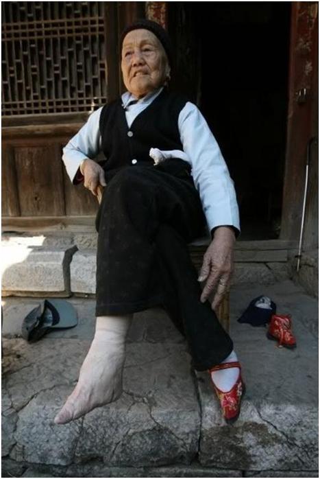 Молодые девушки перебинтовывали себе стопы, чтобы ножка казалась