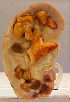 korallovidnye-kamni-v-pochke (244x355, 72Kb)