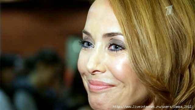 На лечение Жанны Фриске собрали уже более 50 миллионов