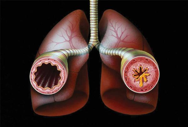 астма (600x406, 115Kb)