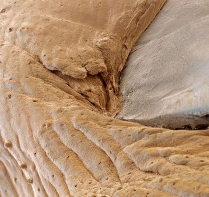 организм человека под микроскопом фото 4 (700x661, 304Kb)