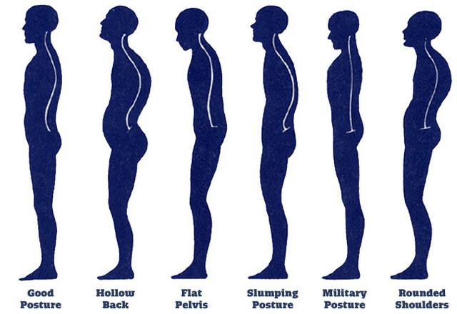 Лфк при нарушении осанки и плоскостопия реферат
