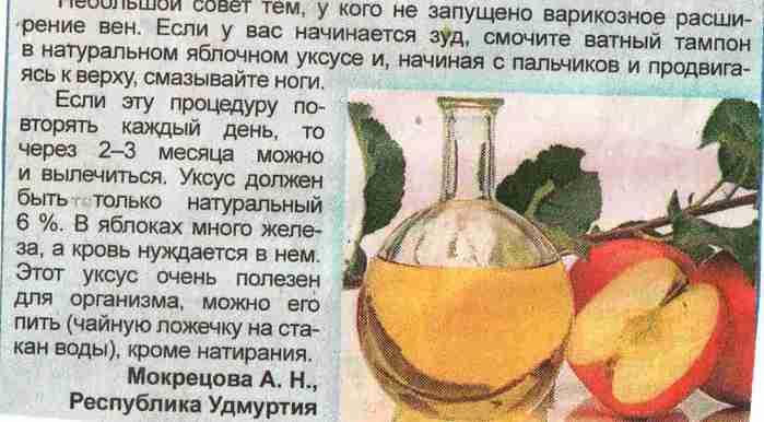 5393736_ot_nezapyshennogo_varikoznogo_cr2 (700x386, 26Kb)
