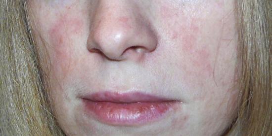 Покраснение кожи лица и пятна на лице 150