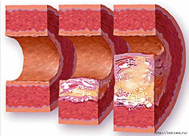 проблема повышенного холестерина