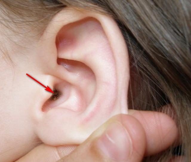 пробка в ухе как выглядит фото