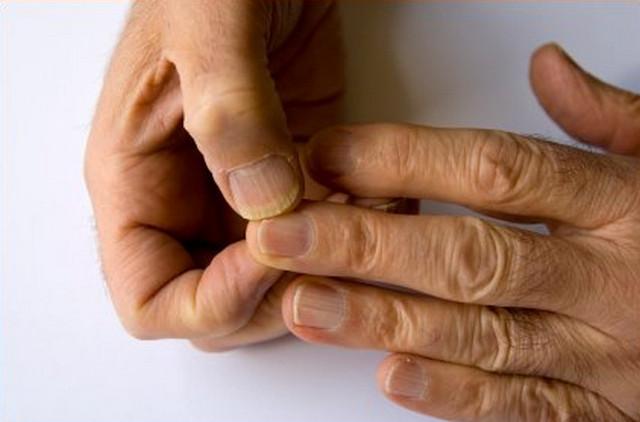 Сахарный диабет ногти