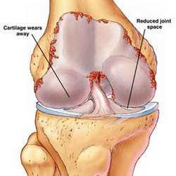 Rheumatoid_Arthritis (250x250, 7Kb)