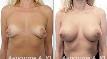 Пластика груди (349x191, 94Kb)