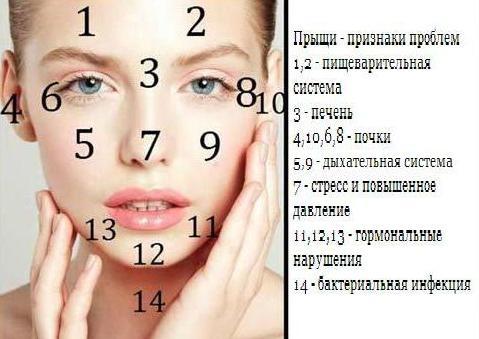 проблемные хоны на лице- (479x339, 30Kb)