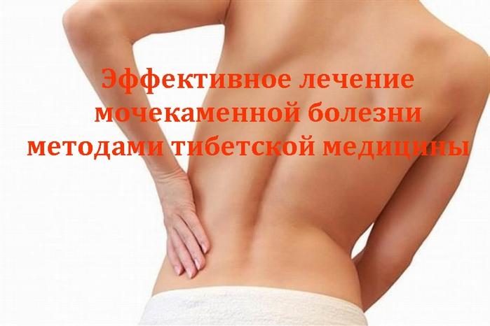 """alt=""""Эффективное лечение мочекаменной болезни методами тибетской медицины""""/2835299__1_ (700x466, 162Kb)"""