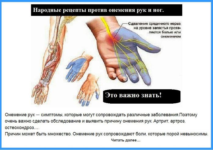 Что делать при онемении пальцев левой руки