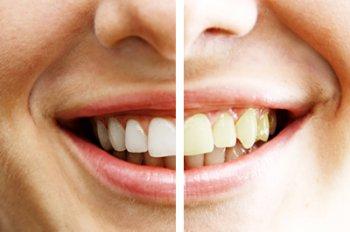 1355139884_otbelivanie-zubov (350x232, 14Kb)