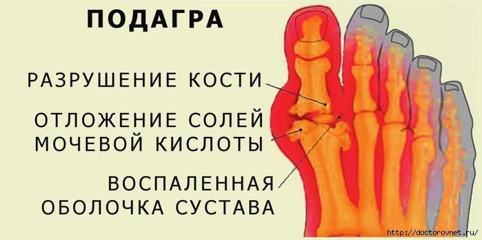 5239983_podagra (700x349, 112Kb)