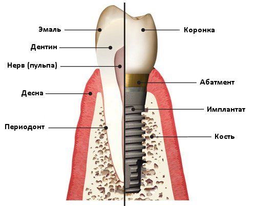 1406640930_dental_implant (500x402, 40Kb)