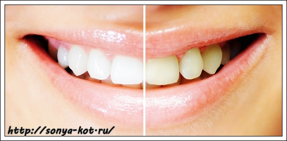 1363684091_teeth-whitening-results2 (572x281, 106Kb)
