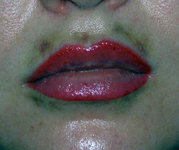 Синяки после татуажа губ