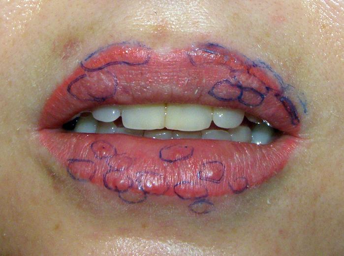 Татуаж губ после появился герпес