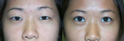 asia-eyelid (400x134, 13Kb)
