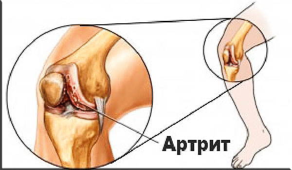 артрит коленных суставов в молодом возрасте