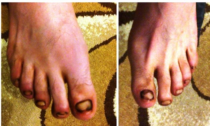 Лечение грибка ногтей на ногах фракцией асд 2