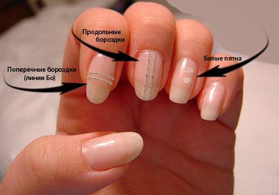 лечим ногти (400x280, 19Kb)