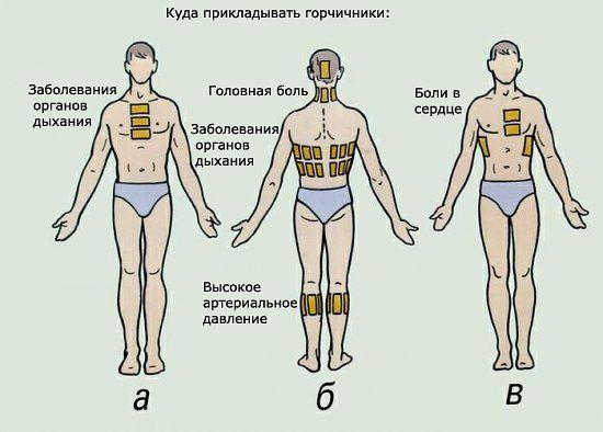 4386599_Kak_stavit_gorchichniki (550x394, 36Kb)